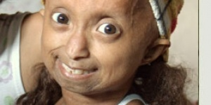 This is a condition known as Hutchinson-Gilford Progeria Syndrome. It is a very rare condition that accelerates the aging process in children. The average life span for children with this disorder is 13 years of age.