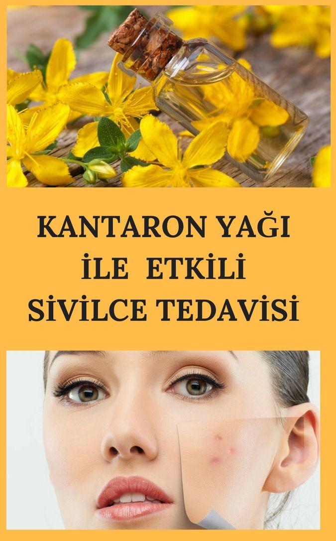 %100 etkili kantaron yağı ile sivilce ve sivilce izlerinizi tedavi edin.