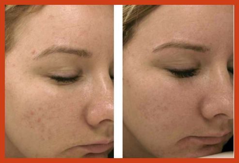 Acne Scar Removal - 4 Effective Acne Scar Removal Treatments >>> Learn more by visiting the image link. #makeupaddict