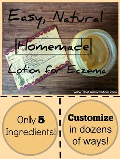 homemade lotion for eczema  1 1/2 cups of Oil (I use equal parts olive, almond, and coconut) 1/4 cup of solid beeswax (or 2/3 cup of beeswax pastilles) 2 Tbsp of Butter (I use equal parts Shea and Cocoa) 20-40 drops of Essential Oil (I use Lavender) 1 tsp of Vitamin E (for preserving purposes only)