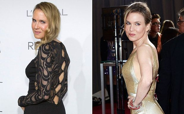 Renee Zellweger unrecognizable: Did she get plastic surgery? #plasticsurgery #celebs