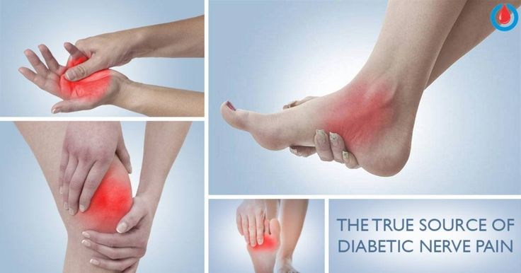Diabetic nerve pain,ordiabetic neuropathy, is a serious complication of diabetes. High glucose levels can damage nerve fibers throughout your entire body, especially in your feet and legs. Also, it can cause pain and numbness.    But, this