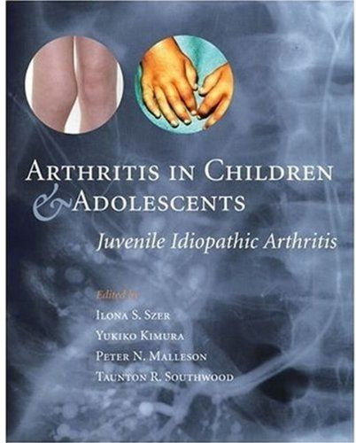 Arthritis medication pediatric