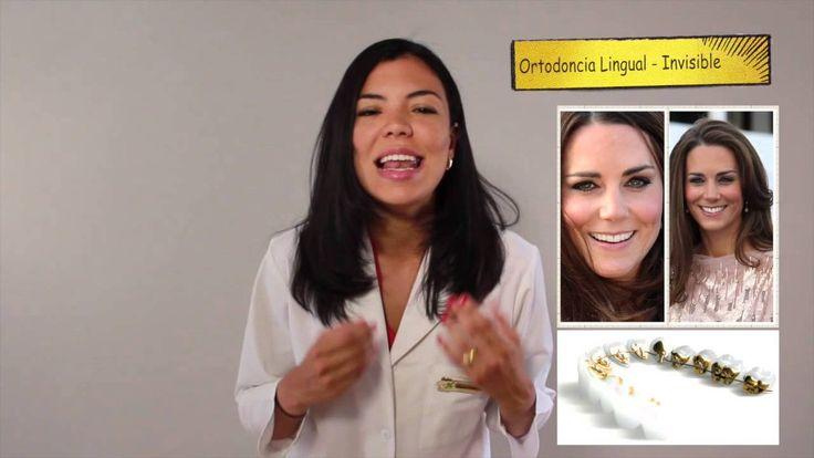 ¿Cuales son los tipos de Ortodoncia famosos? - Brackets antes y despues - Sonreír es salud - YouTube