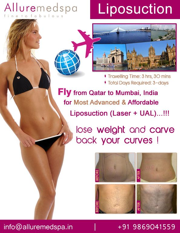 Liposuction is daycare, keyhole and stitch less procedure to reshape and sculpt your body which can be remove unwanted fat from abdomen, hips, arms and thighs by Celebrity liposuction surgeon Dr. Milan Doshi. Fly to India for liposuction surgery (also known as lipo, liposelection and lipoplasty) at affordable price/cost compare to Doha, Ar Rayyan,QATAR at Alluremedspa, Mumbai, India.   For more info- http://www.Cosmeticsurgery-qatar.com/cosmetic-surgery/body-surgery/liposuction.html