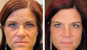 Millions Of Ladies And Guys Are Using Face Massaging Workouts For Ultimate Youth