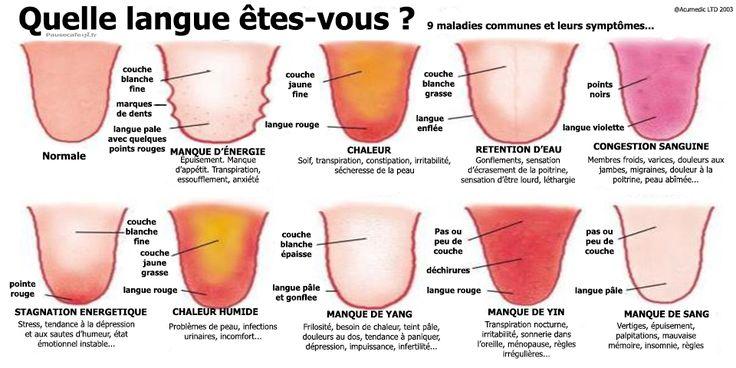 Regardez votre langue et faites le point sur votre état de santé !