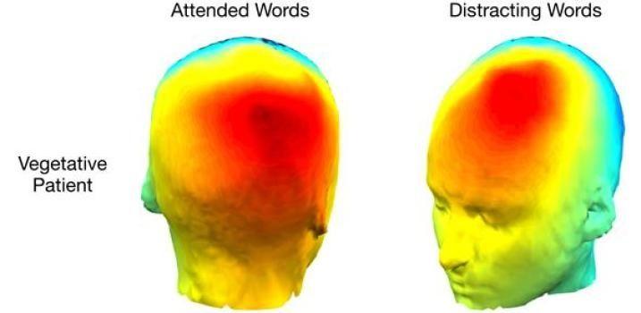 Estudio sugiere que paciente en estado vegetativo es consciente y presta atención