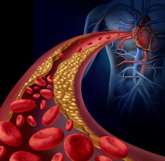 5 remedii naturiste care curata arterele de placile de colesterol
