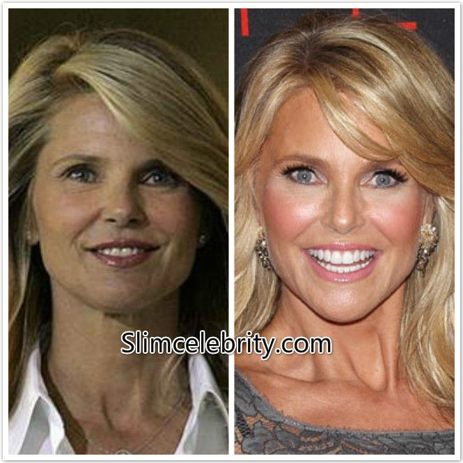 Christie Brinkley Plastic Surgery Before and After Photos Face Lift, Eyelid Surgery and Fillers 2
