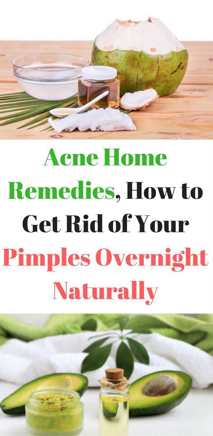 Acne Home Remedies, How to Get Rid of Your Pimples Overnight