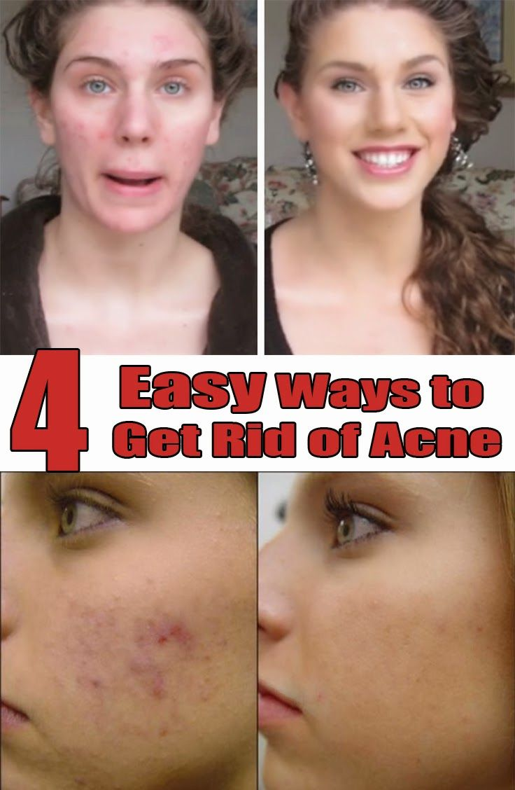 Acne Treatment Solutions: 4 Easy Ways to Get Rid of Acne