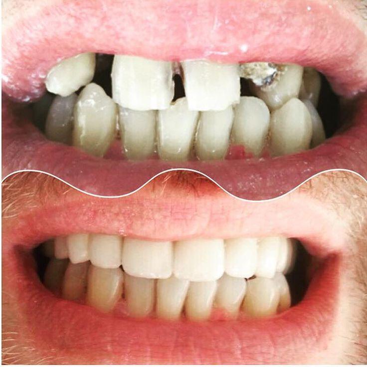 Herkese slm ✋ Doğal, kibar, estetik, fonksiyonel dişler yaptık hastamıza. Sonuçtan çok memnun oldu bizde güzel günlere vesile olmasını diledik. Rahatça gülsün, dilediğince yesin fındığı cevizi. 😄😄✌ #camlicadent #dis #klinik #estetik #guzellik