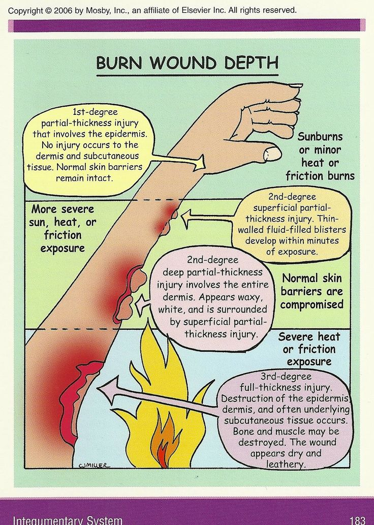 Burn Wounds - treat light wounds with cool water, bigger wounds with cold, damp wraps after calling ambulance. Do not remove fabric or other things stuck to the wound to avoid bleeding, clothes, jewellery, watches etc. that are not stuck to the wound should be removed.