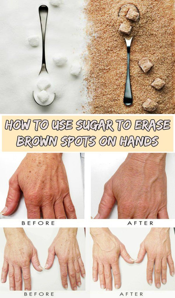 Learn how to use sugar to erase brown spots on hands.