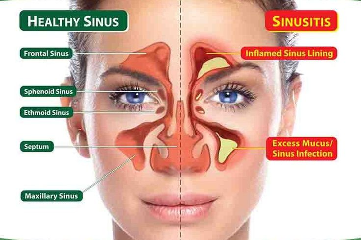 Having clogged sinuses isn't fun. You can't breath, you can't smell, it can hurt, and it changes your voice entirely. Finding relief when you have clogged sinuses is usually like finding a million dollars on the ground — it's amazing! The causes for nasal congestion can range greatly, and you don't have to be sick to […]