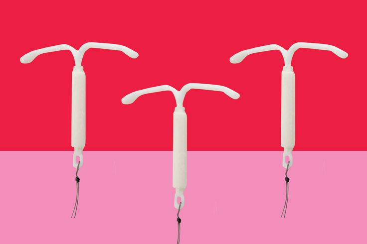 A tale about IUDs, IUD side effects and the process of insertion.
