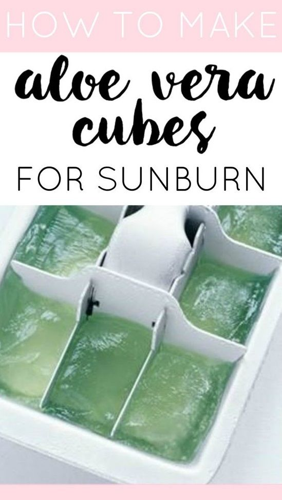 These aloe vera cubes are simple to make and one of the best sunburn remedies for fast relief! A summer-time cure.