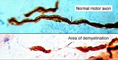 Area of demyelination has had myelin stripped off. Cdip.