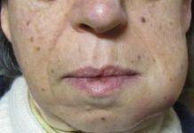 Absceso dental o periodontal, que es, causas, síntomas y tratamiento