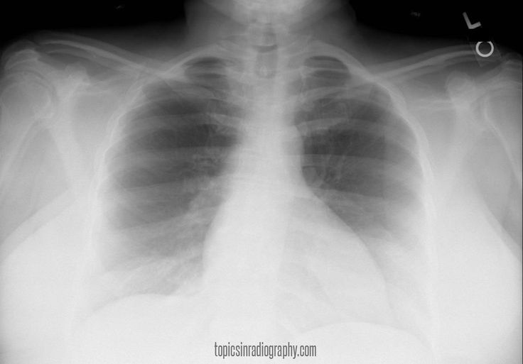 56 best radiographic positioning images on pinterest radiology whats wrong with this radiograph fandeluxe Choice Image