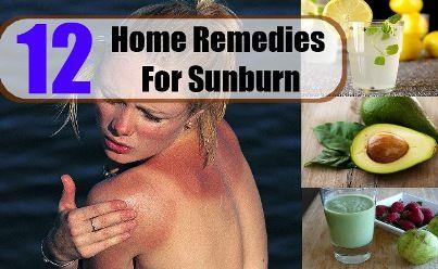 Herbal Cure For Sunburn | Health & Natural Living