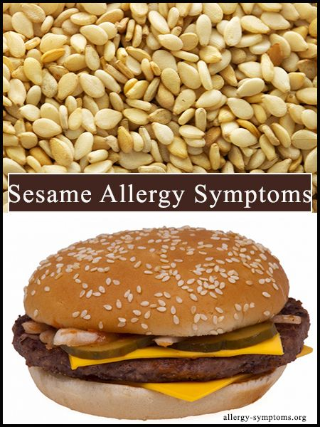 Sesame is one of the main ingredients used while preparing Asian and Middle Eastern dishes and the growing popularity of such food is responsible for causing sesame allergy. The age long trend of having burgers on a daily basis in America and other European countries wherein sesame seeds are used as dressing on the buns, are also responsible for the growing number of sesame allergy cases. http://allergy-symptoms.org/sesame-allergy-symptoms/