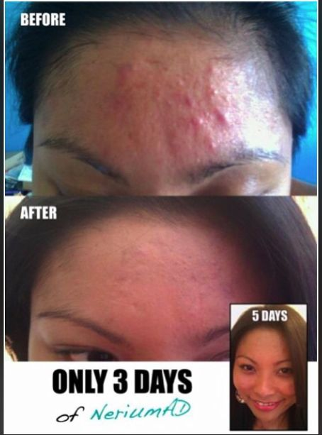 Do you want results like this?? Go to www.nerium.com/kauriann/customers and place your order of NeriumAD or text 225-223-7082 for more info!