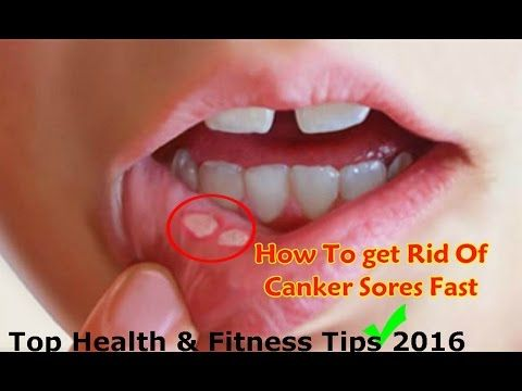 How to Get Rid Of Canker Sores in Mouth and Tongue Home Remedies