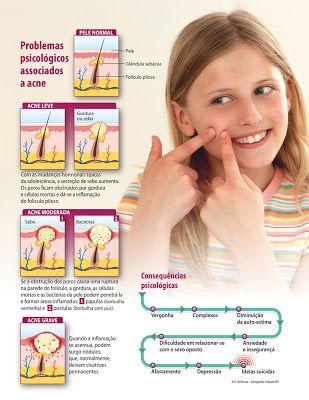 LoQueSuMedicoNOsabe : ¡Blancanieves y el síndrome de Laron! Experimento McDonald's Día 13 FASE 2