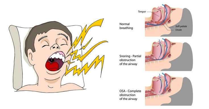 how to stop really bad snoring
