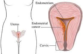 Symptoms of Uterine Cancer (Cancer Of The Uterus) Know The Warning Signs-My Mother's Story