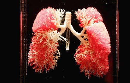Pulmonary heart disease is a rare disease but progressive obtained because of an increase in pulmonary vascular resistance leading to decreased right ventricular function due to an increase in right ventricular.