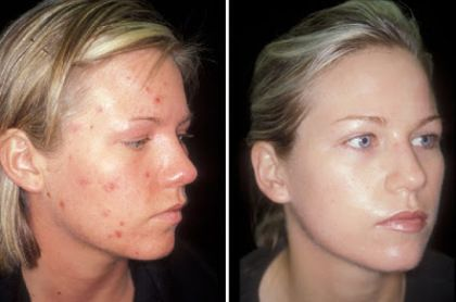 Acne Scar Removal - Acne Scar Treatments - The Best Acne Scar Rejuvenation For Beautiful Skin, Quickly ** Read more info by clicking the link on the image. #acneproblems