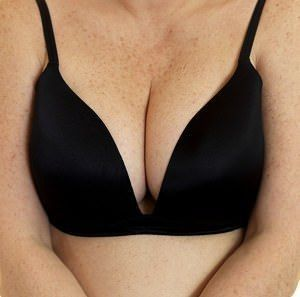 Remedies Offered for Troublesome Under-Breast Rash | Many women suffer from uncomfortable under-the-breast rash, but they don't have to.