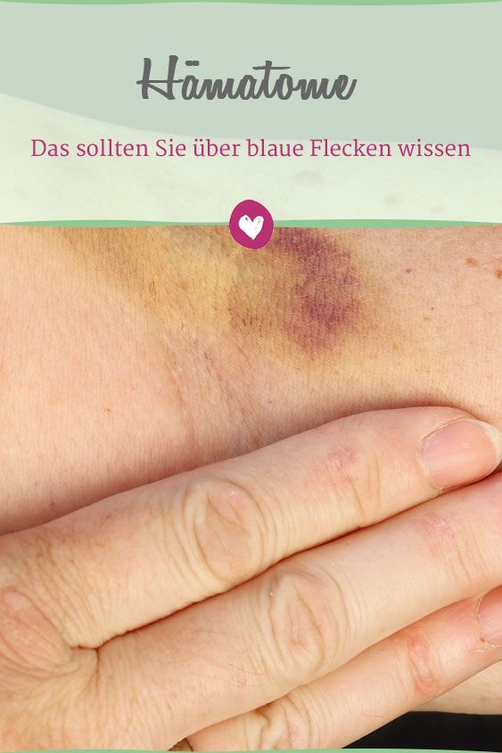 Wissenswertes über blaue Flecken. #Gesundheit #blaueflecken #Hämatome