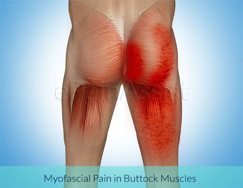 One of the most common causes of buttock pain is myofascial pain, which is characterized by pain starting from tight bands of muscle or knots in the gluteal muscles. Know the causes, symptoms, treatment, pt and exercises.