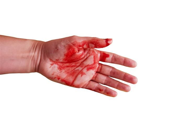 """A young woman in Italy has a rare and mysterious condition that causes her to sweat blood, according to a new report of her case. The 21-year-old told her doctors that, over the last three years, she periodically experienced bleeding from her face and palms, without any cuts or skin lesions. These bleeding episodes typically lasted about 1 to 5 minutes, and were more intense when she was under emotional stress. While the woman was at the hospital, her doctors observed """"the discharge of b..."""