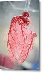 Resin Cast Of Heart Blood Vessels Metal Print by Arno Massee