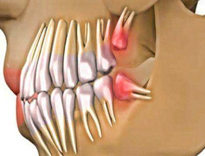 Скажите зубным имплантам прощай, или как за 9 недель вырастить новые живые зубы
