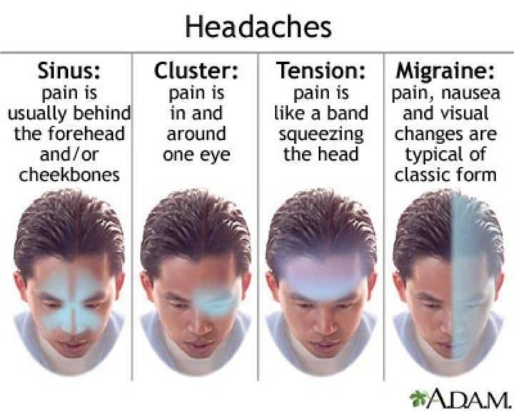 Top 25+ best Symptoms of headache ideas on Pinterest | Sinus ...