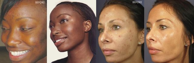 Effects of Kojic Acid. Before and After. Pre-Order Now!!! Hyaluronic Skin Brightening Creme W/ Kojic Acid - See more at: https://kambrias.com/product/hyaluronic-and-kojic-acid-skin-brightening-creme/#sthash.Fa4vDNNx.dpuf