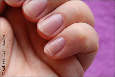 broken nail fixed with a teabag