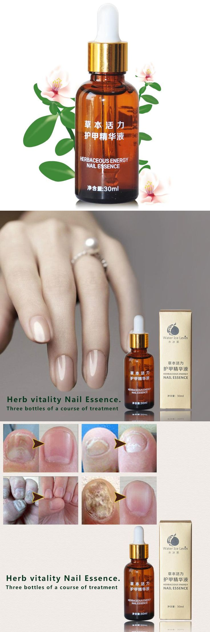 [Visit to Buy] Pure Plant Fungal Nail Treatment Essence Nail and Foot Whitening for Cuticle Oil Toe Nail Fungus Removal Feet Care Nail Gel #Advertisement