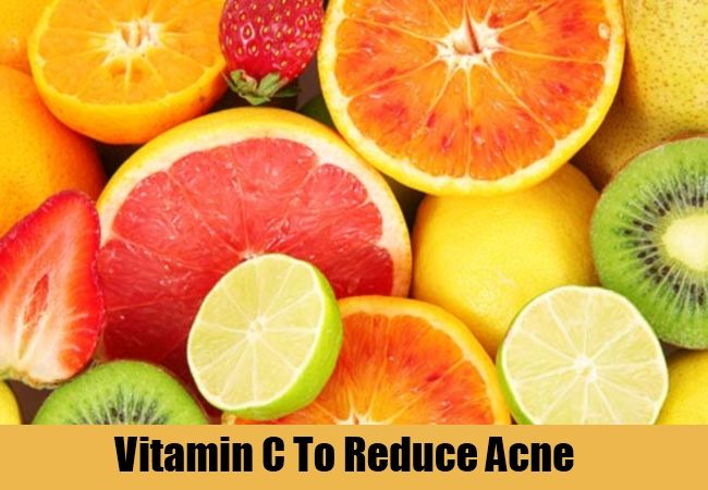 lifestyletipsforgirls - Acne Scar Remedies - 4 Natural Tips That Do Wonders For Your Skin