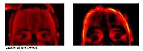 Biofeedback w terapii migreny