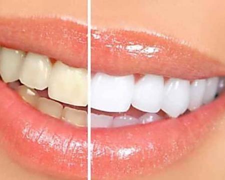 Hai i denti gialli? Ecco come farli tornare davvero bianchi