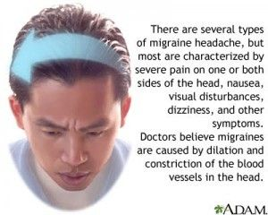 Migraines - What are they, and how to treat them