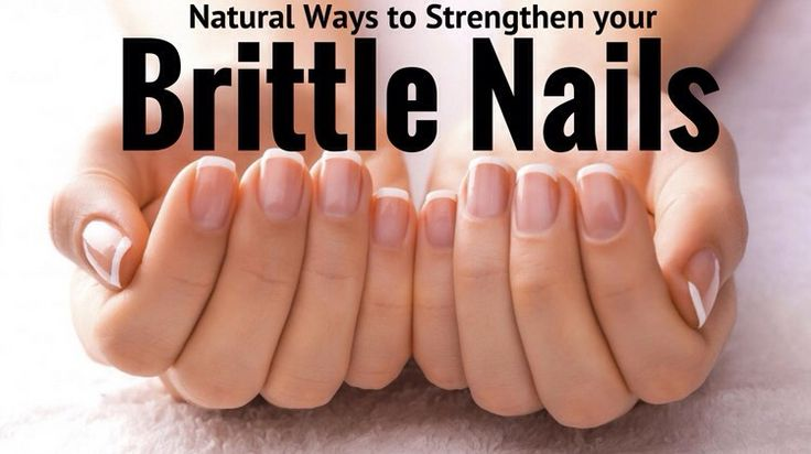 Natural ways to strengthen your brittle nails brittle