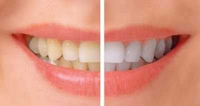 Teeth Whitening Little Elm: We are pleased to offer professional teeth whitening to lighten your teeth and restore your bright, white smile. #teethwhitening #Smiling #stains #teethstainremoval #whitersmile #whitening #littleelm #texas #dentists #didyouknow u